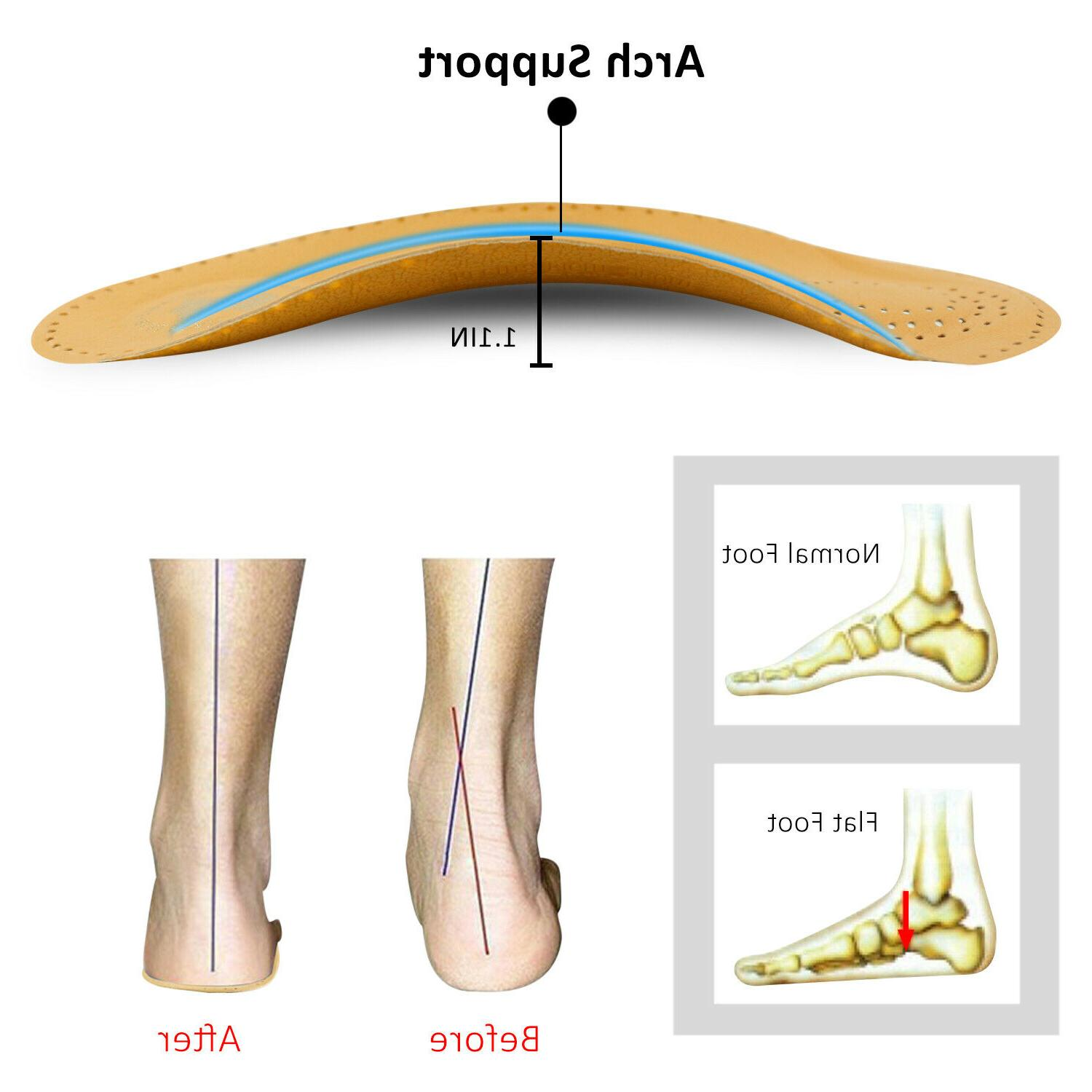 Arch Insoles Flat Pads